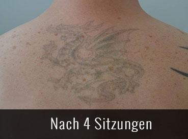 Tattoo Entfernung nacher