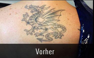 Tattoo Entfernung vorher